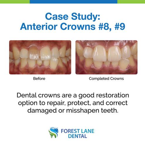 Anterior Crowns #8, #9