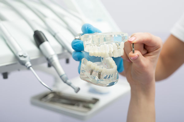 Bellevue Park Dental - Family Cosmetic Implants Invisalign Braces Dentist in Bellevue, WA 98008.