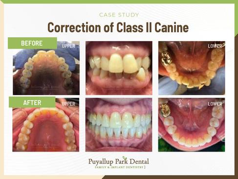 Correction of Class II Canine