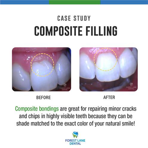 Composite Filling