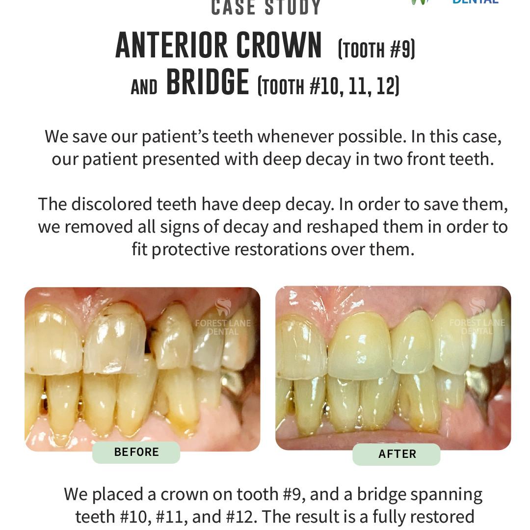 Anterior Crown (Tooth #9) & Bridge (#10, 11, 12)