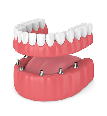 Gentle Dental of Fort Worth TX 76107 General Family Emergency Implants