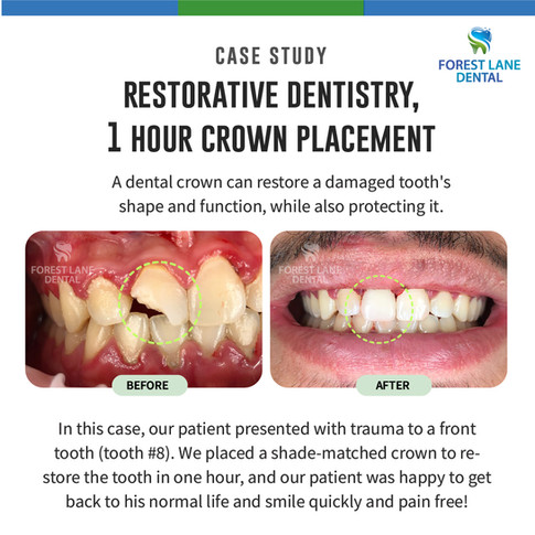 Restorative Dentistry, 1 Hour Crown Placement