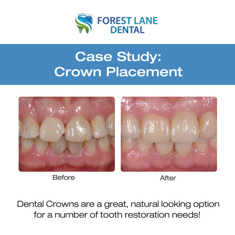 Crown Placement