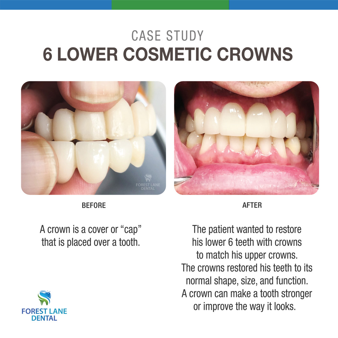 6 Lower Cosmetic Crowns