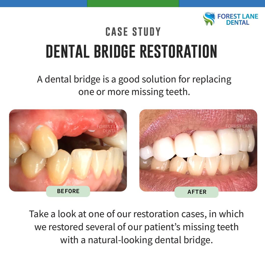 Dental Bridge Restoration