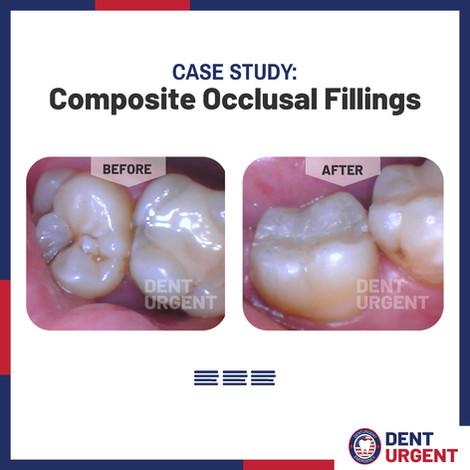 Composite Occlusal Fillings.jpg