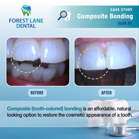 Composite Bonding #8