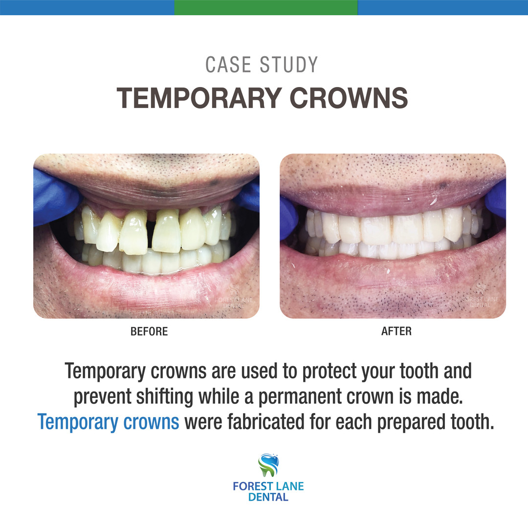 Temporary Crowns