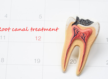 How To Tell When You Need A Root Canal, Explained By Your Dallas Dentist | Forest Lane Dental