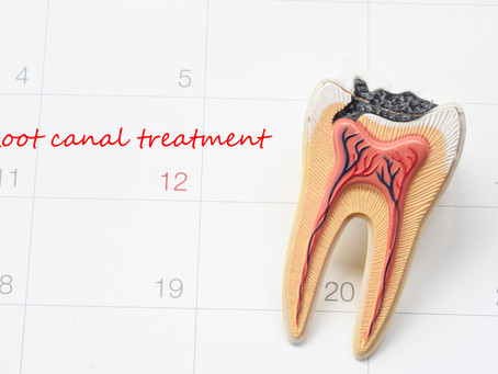 How To Tell When You Need A Root Canal, Explained By Your Dentist in Northwest Dallas, Texas