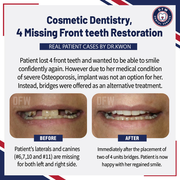 4 Missing Front Teeth Restoration