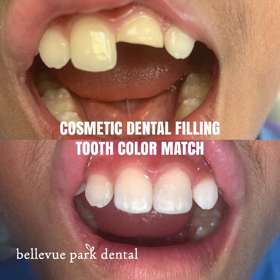 Cosmetic Dental Filling
