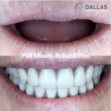 Full Mouth Rehabilition