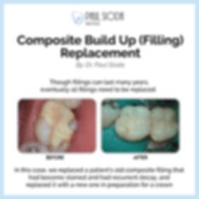 PaulSioda_Composite Build Up (Filling) R