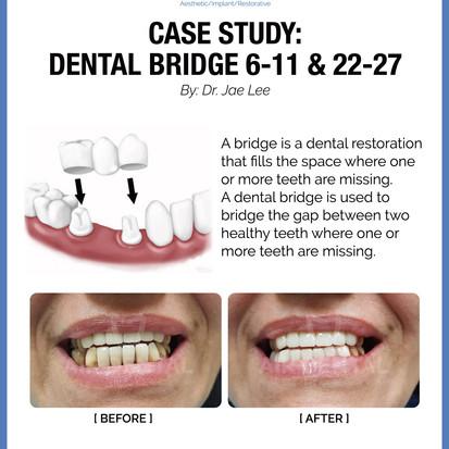 Dental Bridge 6-11 & 22-27