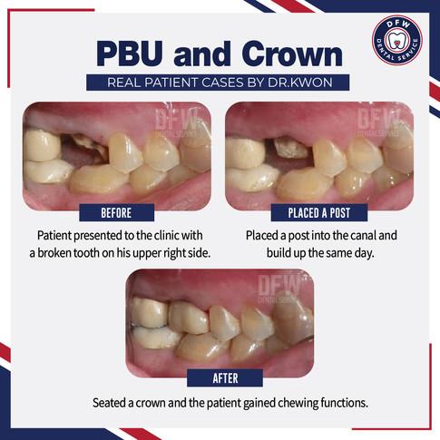 PBU and Crown