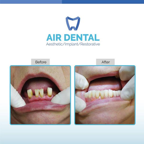 Air Dental Case Study