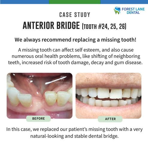 Anterior Bridge (Teeth #24, 25, 26)