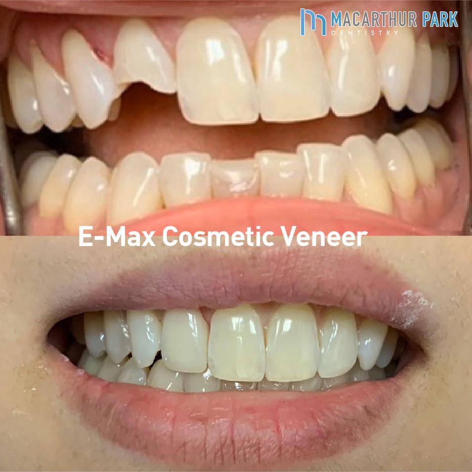 E-Max Cosmetic Veneer