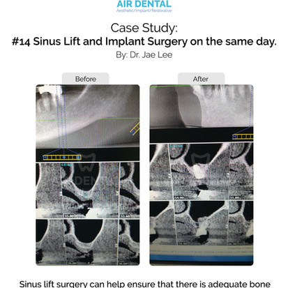 #14 Sinus Lift and Implant Surgery on the Same day