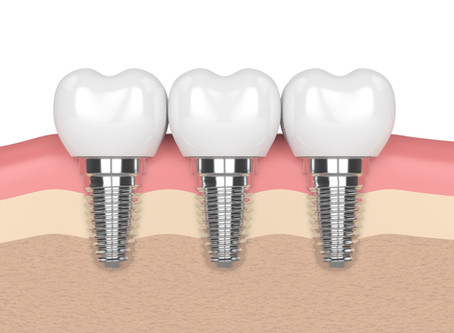 What are the Benefits of Dental Implants? Glen Ellyn Dentist Explains | Dental Care of Glen Ellyn