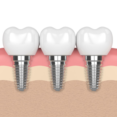 What are the Benefits of Dental Implants? Family & General Dentist in Glen Ellyn, Illinois Explains