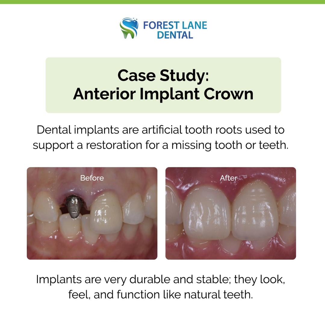 Anterior Implant Crown