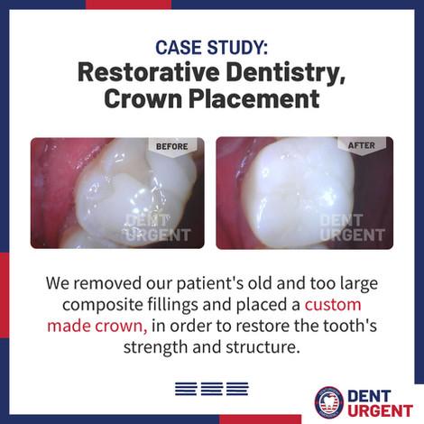 Restorative Dentistry Crown Placement.jp