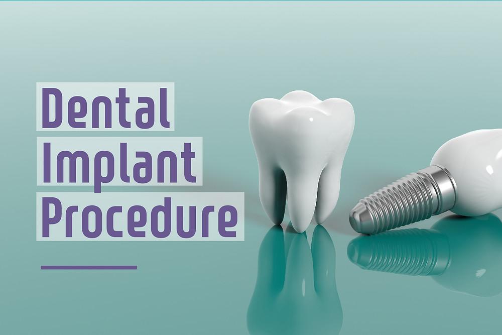 Step By Step Two Stage Dental Implant Procedure In Burbank Air Dental