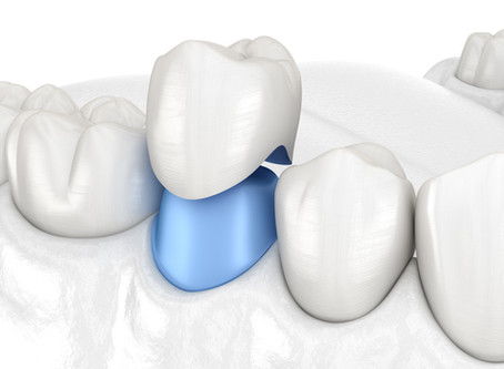 How a Dental Crown Restores a Tooth, From Your Emergency & General Dentist in Portland, OR