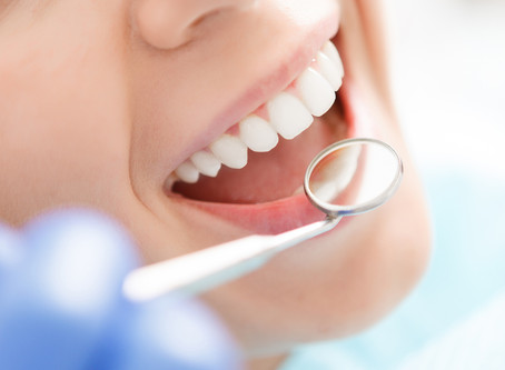 People in Irving, TX Ask: Is Teeth Whitening Right For Me? | Cosmetic dentistry DFW Dental Service
