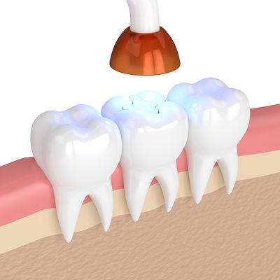bigstock--d-Render-Of-Teeth-With-Dental-
