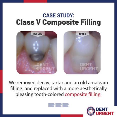 Class V Composite Filling 2.jpg