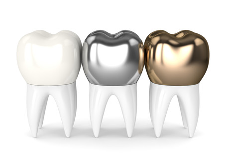 How a Dental Crown Restores a Tooth, From Your Family & General Dentist in Irving and Las Colinas