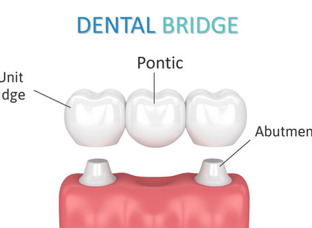 Renton Patients Ask: What is a Dental Bridge, and is it a Good Option For Me? - Shaun Lee DDS