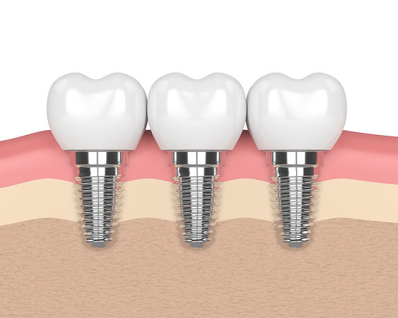 bigstock--D-Render-Of-Dental-Implants-21