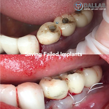 Saving Failed Implants