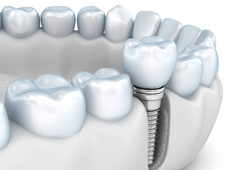 What are the Benefits of Dental Implants? Dallas Dentist Explains | Forest Lane Dental