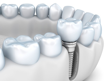 What are the Benefits of Dental Implants? Your General dentist in Northwest Dallas, Texas Explains