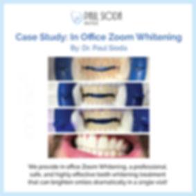 PaulSioda_In Office Zoom Whitening.jpg