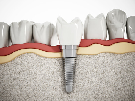 What are the Benefits of Dental Implants? Your General & Emergency Dentist in Irving, TX Explains