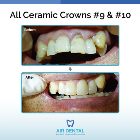 All Ceramic Crowns #9 & #10