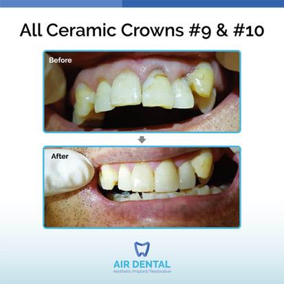 All Ceramic Crowns #9 & #10