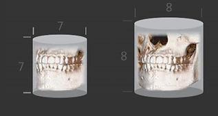 3D CT 5.jpg