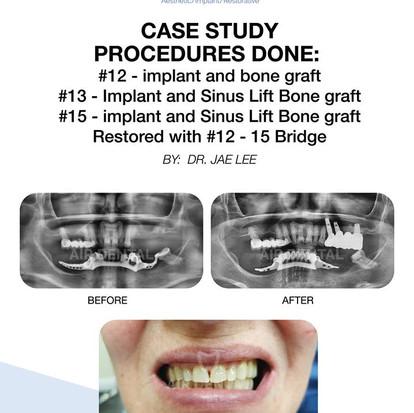 Implant and Sinus Lift Bone Graft