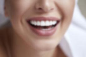 bigstock-Healthy-White-Smile-Close-Up--2