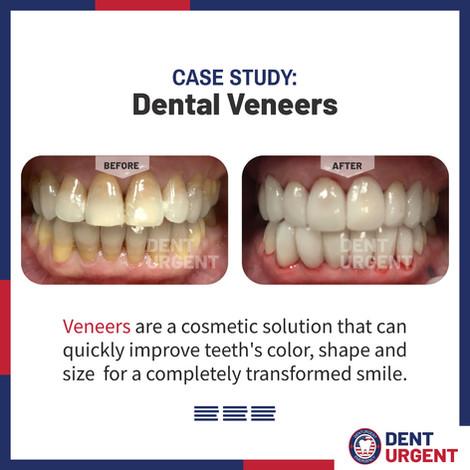Dental Veneers.jpg