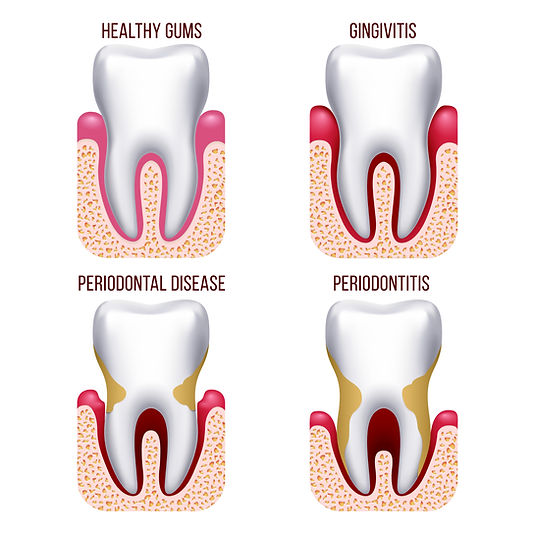 Periodontal Puyallup Park Dental Emergency Implants Braces Invisalign 13909 Meridian East, Suite A-1 Puyallup, WA 98373