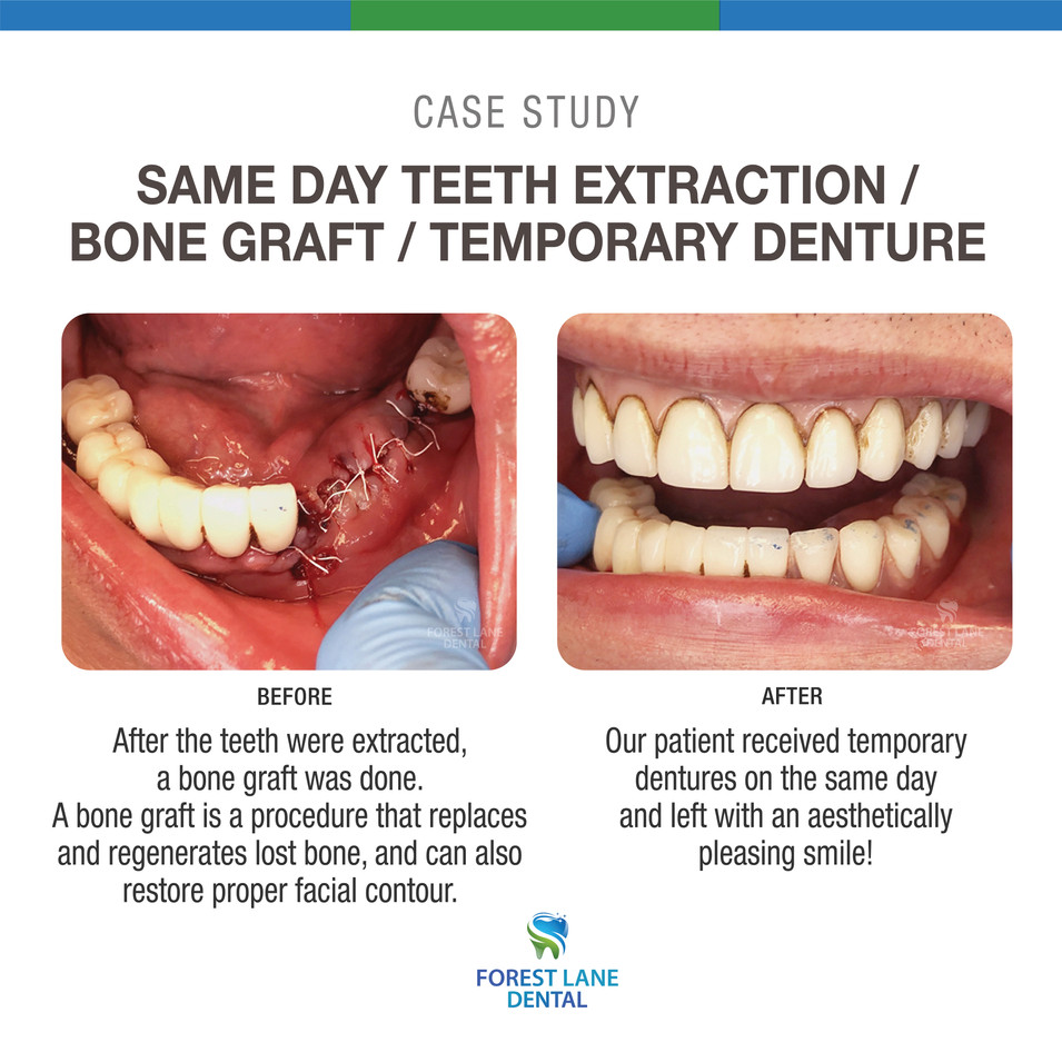Same Day Teeth Extraction
